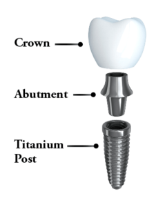 The parts of a dental implant: crowns, abutment, titanium post