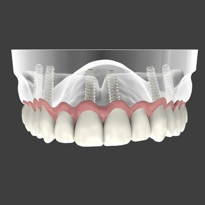 Graphic of implant-supported dentures