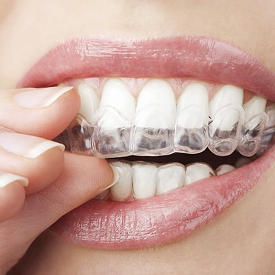 Putting on Invisalign clear aligners