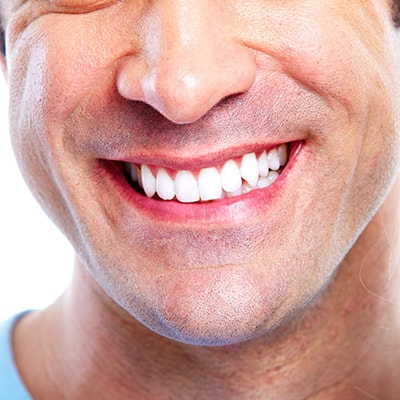 Close up shot of a smile, thanks to dental implants
