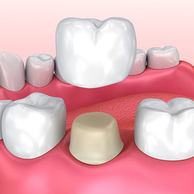 Graphic of a dental crown